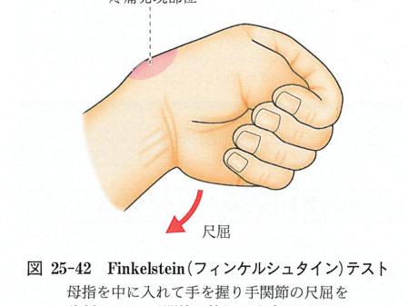 腱鞘炎テスト