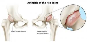 股関節 痛み 矯正