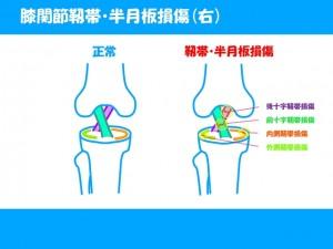 膝で痛めやすい部分