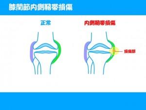 膝の痛めやすい靭帯