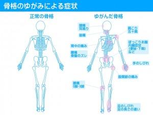 骨のゆがみによる症状